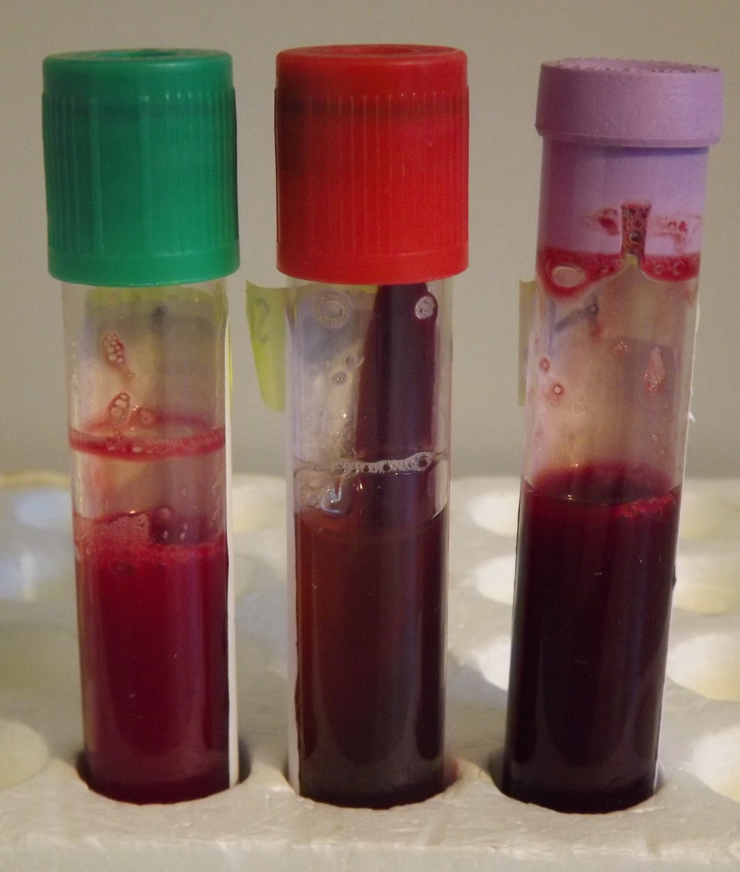 Selecting the right blood test tube and techniques for an accurate common blood tubes lithium heparin green clotted red and edta nvjuhfo Image collections