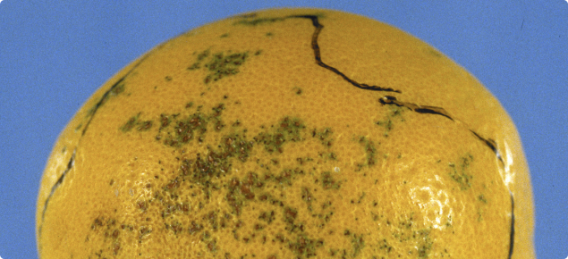 Septoria spot on external orange fruit surface showing characteristic small spots. Photo © NSW Department of Primary Industries.