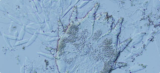 Itch mite as seen under a microscope, from skin scraping.